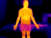 Thermographie corps entier - Dr Panizza